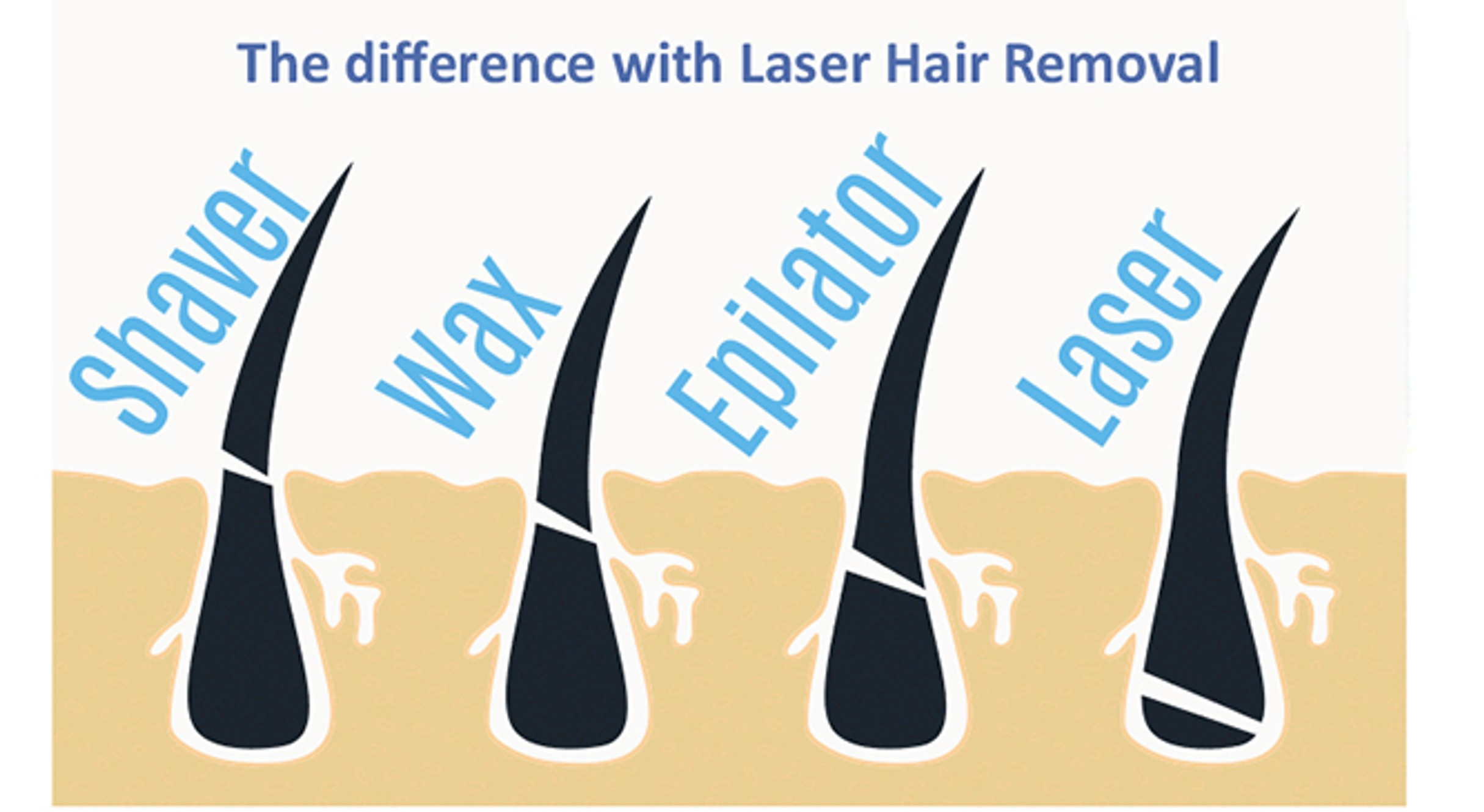All About Laser Hair Removal good or bad