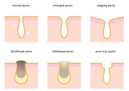 Best Tips To Cure Open Pores at home - Picture