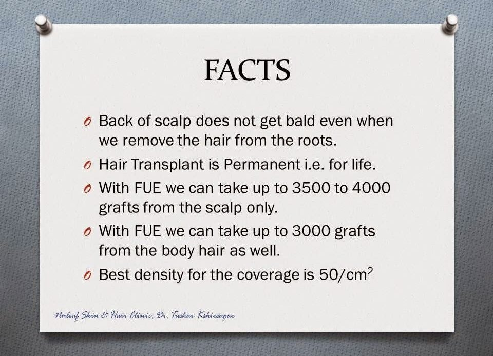 Best Guide To Hair Transplant