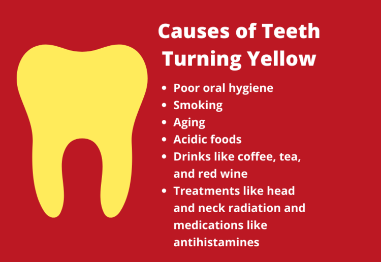 Yellow Teeth - Causes Prevention & Treatment - Chart