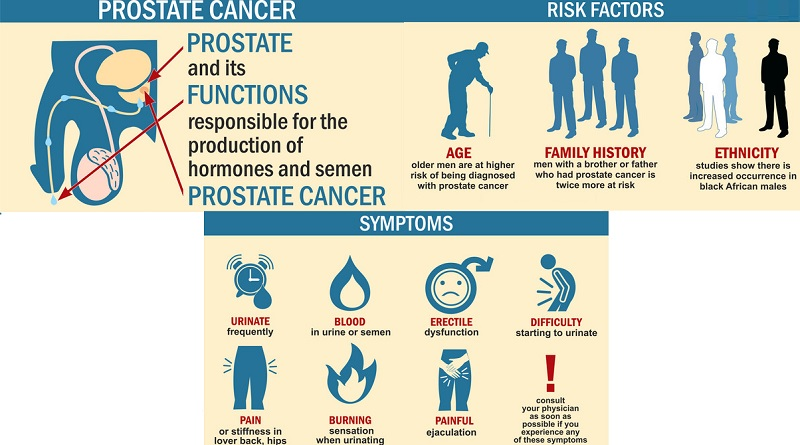 All About Prostate Cancer - Chart