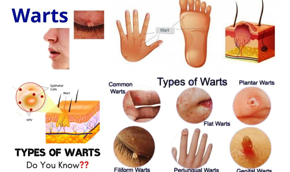 Detailed Information Of Warts - Types