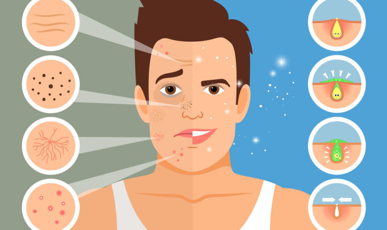 Men's Skin Problems And Solutions - Picture