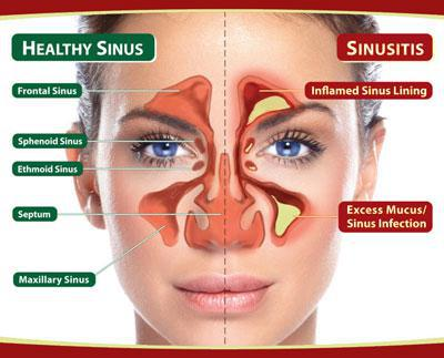 Best Home Remedies To Cure Sinus Infection (sinusitis)