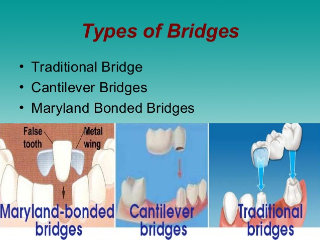 Difference Between Bridge And Implant - Types of bridges