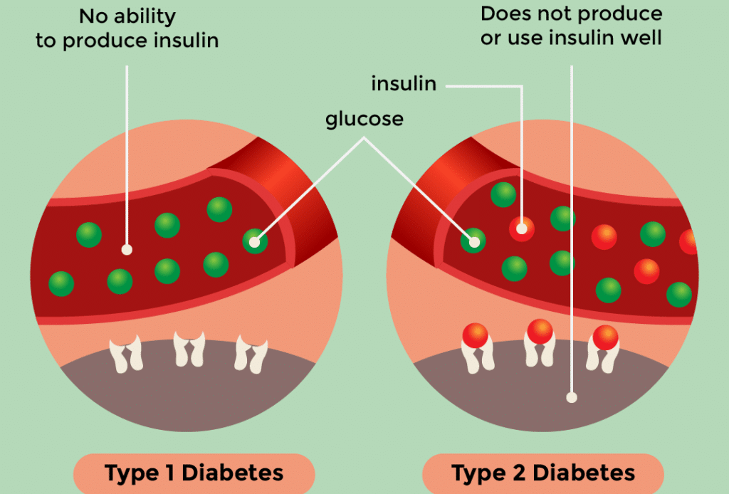 Difference Between Type 1 Diabetes And Type 2 Diabetes - chart
